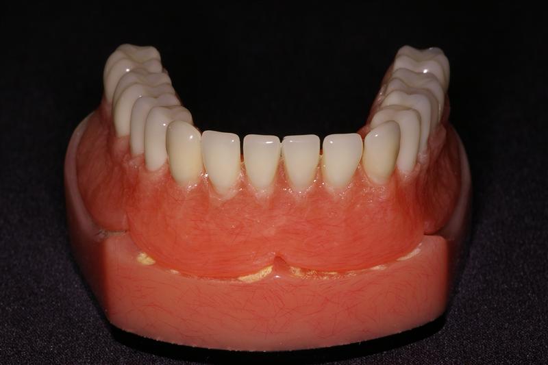 Removable Denture | Ask A Dentist